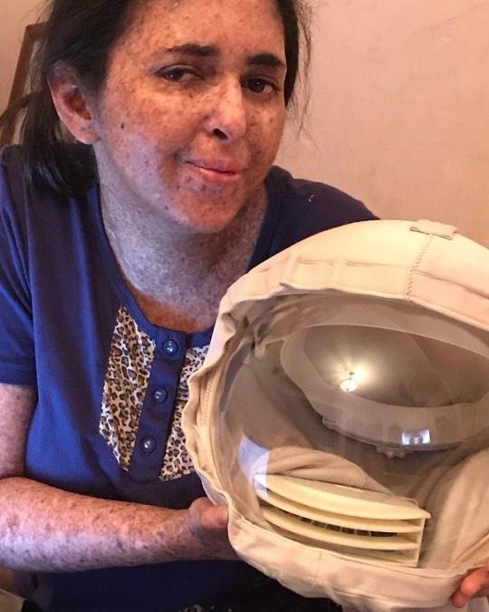 Cô gái dị ứng ánh Mặt Trời, 20 năm ra ngoài phải đội mũ phi hành gia - Ảnh 3.