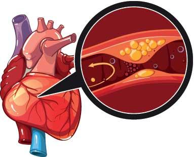 4 dấu hiệu bệnh tim mạch vành kêu cứu, đừng bỏ qua vì có thể cướp đi tính mạng - Ảnh 2.