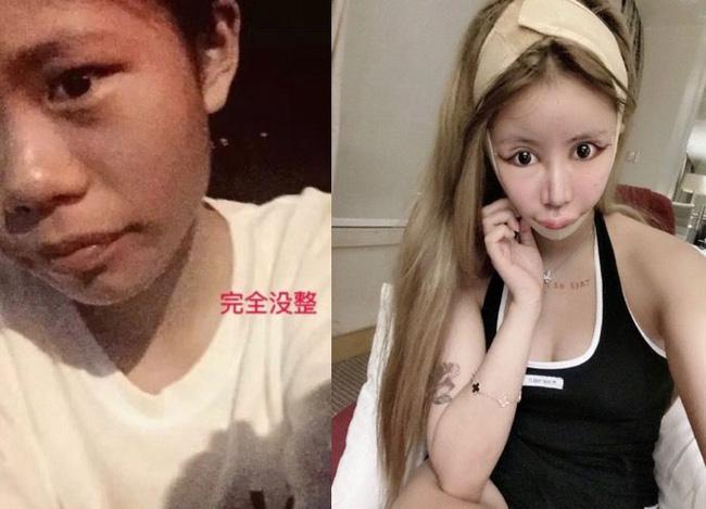 Dân tình khiếp vía khi nhìn gương mặt mẫu nữ Trung Quốc 16 tuổi sau 70 lần phẫu thuật thẩm mỹ - Ảnh 2.
