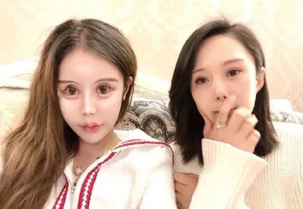 Dân tình khiếp vía khi nhìn gương mặt mẫu nữ Trung Quốc 16 tuổi sau 70 lần phẫu thuật thẩm mỹ - Ảnh 3.