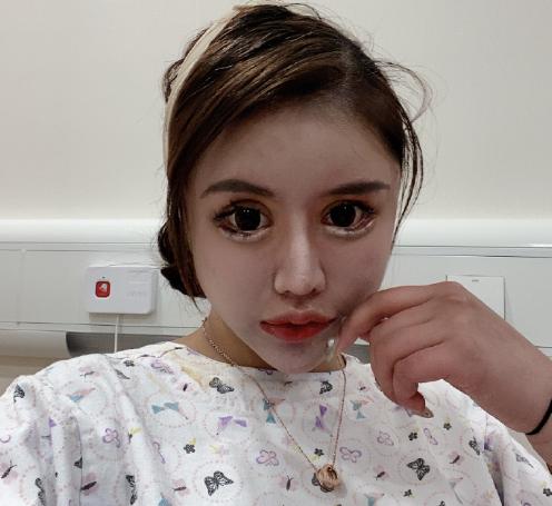Dân tình khiếp vía khi nhìn gương mặt mẫu nữ Trung Quốc 16 tuổi sau 70 lần phẫu thuật thẩm mỹ - Ảnh 4.