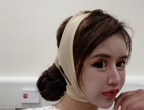 Dân tình khiếp vía khi nhìn gương mặt mẫu nữ Trung Quốc 16 tuổi sau 70 lần phẫu thuật thẩm mỹ - Ảnh 5.