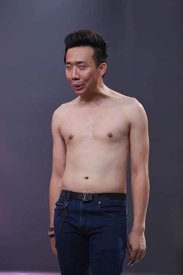Hành trình 14 năm Trấn Thành lột xác ngoại hình ngoạn mục, thừa nhận dao kéo vì đẹp nhân tạo còn hơn xấu tự nhiên - Ảnh 12.