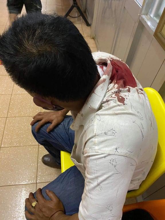 Mang lồng chim đi taxi, khách bị tài xế rút dao đâm nhập viện - Ảnh 2.