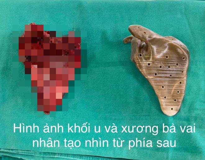 Lần đầu tiên ở Việt Nam: Phẫu thuật thay xương bả vai cho bệnh nhi nhỏ tuổi nhất - Ảnh 1.