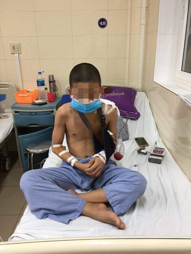 Lần đầu tiên ở Việt Nam: Phẫu thuật thay xương bả vai cho bệnh nhi nhỏ tuổi nhất - Ảnh 2.