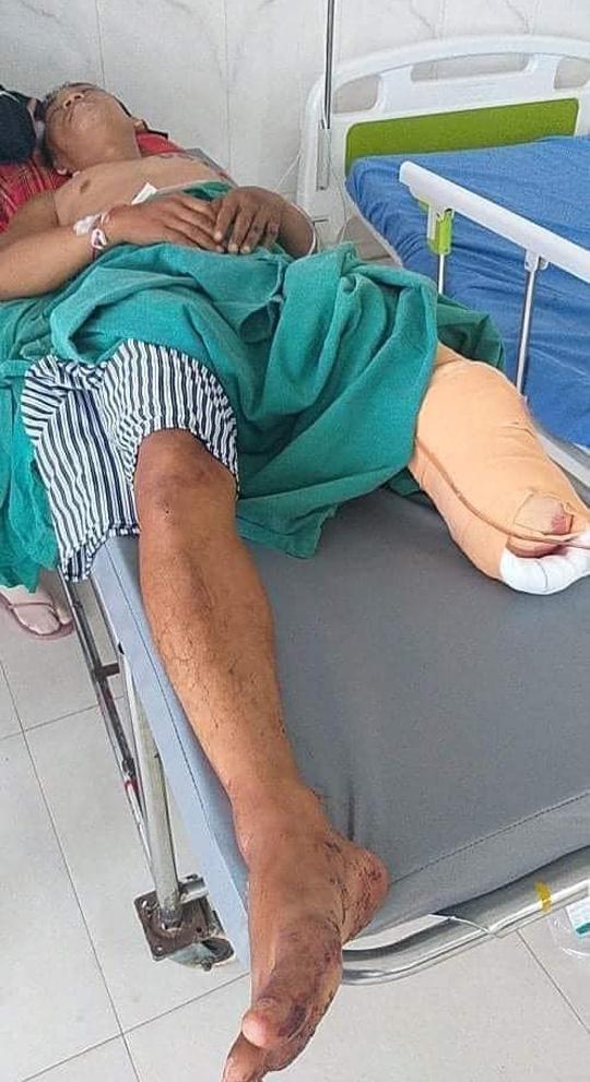 Cựu cầu thủ Việt gặp tai nạn kinh hoàng, phải cắt bỏ một chân gây thương tiếc - Ảnh 1.