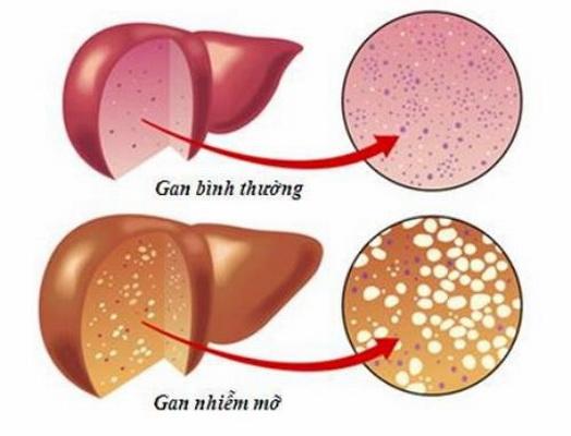 Bạn đã hiểu đúng về gan nhiễm mỡ? - Ảnh 1.