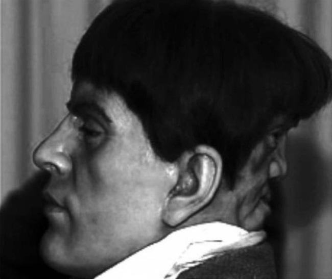 Bí ẩn chàng trai quý tộc có gương mặt phía sau gáy, mỗi khi khóc thì nó lại cười và bị quấy rầy đến nỗi hóa điên và tự tử ở tuổi 22 - Ảnh 4.