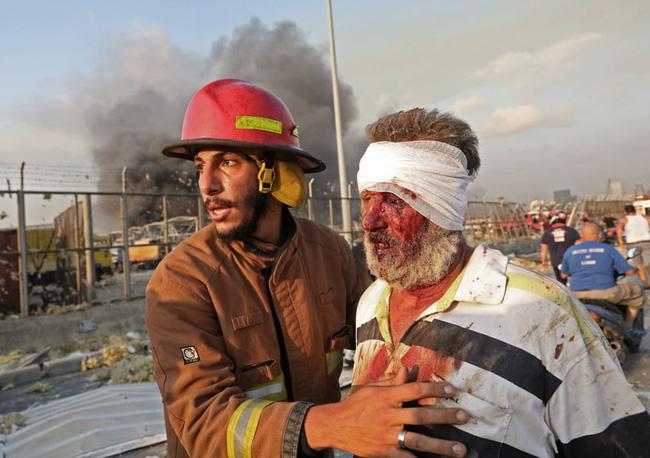 Tiếng kêu thảm thiết của nạn nhân vụ nổ như tận thế ở Lebanon: Một chị gái của tôi đã chết, một chị bị gãy cổ, cha mẹ tôi không rõ sống chết - Ảnh 1.