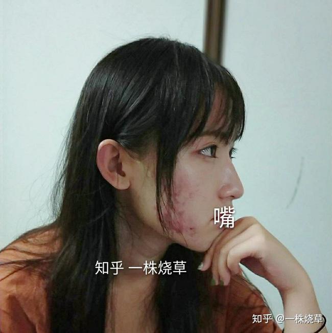 Mặt mộc không hoàn hảo của hotgirl Trung Quốc: Góc nghiêng cực phẩm, đường nét thanh tú cũng không thể che giấu sự thương tổn đáng sợ trên gương mặt - Ảnh 4.