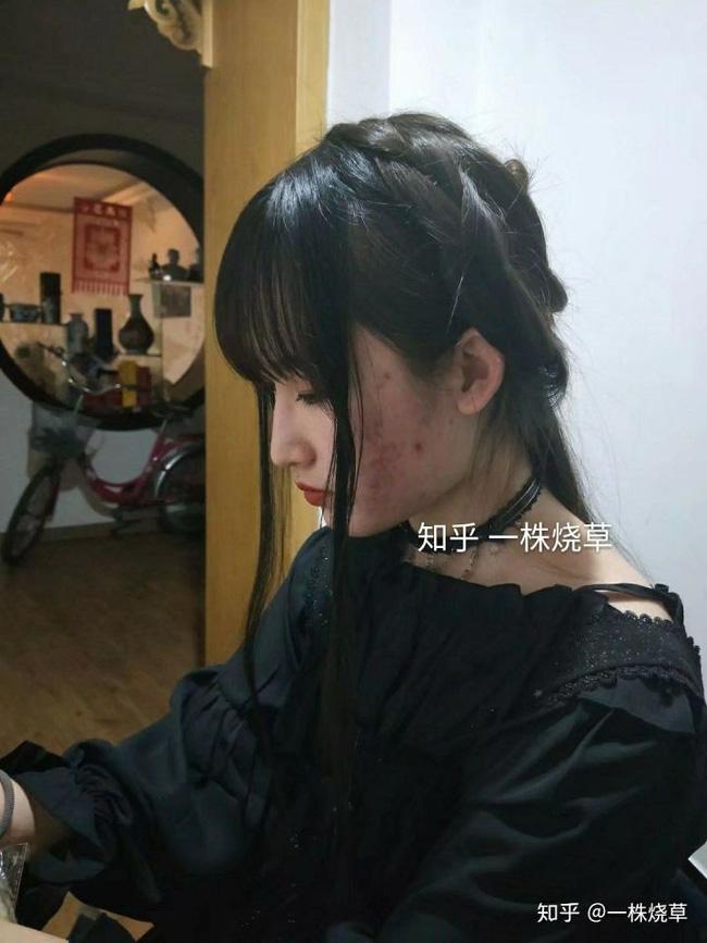 Mặt mộc không hoàn hảo của hotgirl Trung Quốc: Góc nghiêng cực phẩm, đường nét thanh tú cũng không thể che giấu sự thương tổn đáng sợ trên gương mặt - Ảnh 5.