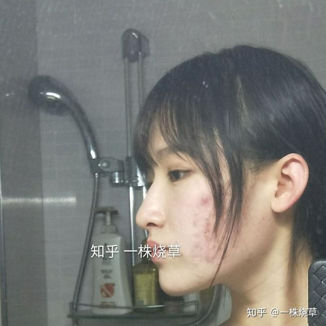 Mặt mộc không hoàn hảo của hotgirl Trung Quốc: Góc nghiêng cực phẩm, đường nét thanh tú cũng không thể che giấu sự thương tổn đáng sợ trên gương mặt - Ảnh 6.