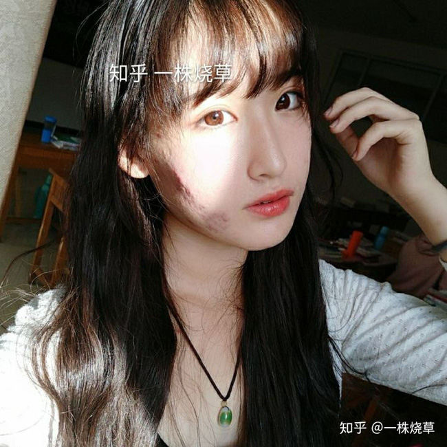 Mặt mộc không hoàn hảo của hotgirl Trung Quốc: Góc nghiêng cực phẩm, đường nét thanh tú cũng không thể che giấu sự thương tổn đáng sợ trên gương mặt - Ảnh 7.