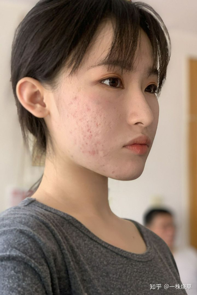 Mặt mộc không hoàn hảo của hotgirl Trung Quốc: Góc nghiêng cực phẩm, đường nét thanh tú cũng không thể che giấu sự thương tổn đáng sợ trên gương mặt - Ảnh 9.