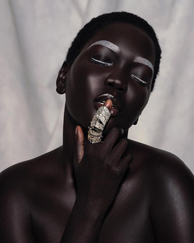 Từng bị chê đen như than và sống khổ cực dưới ánh mắt soi mói của người đời, cô gái có màn lột xác khiến cả thế giới nể phục - Ảnh 8.