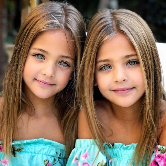 Cặp song sinh được mệnh danh đẹp nhất thế giới, 6 tháng tuổi đã nhận hợp đồng quảng cáo có ngoại hình thay đổi ra sao sau 10 năm? - Ảnh 5.