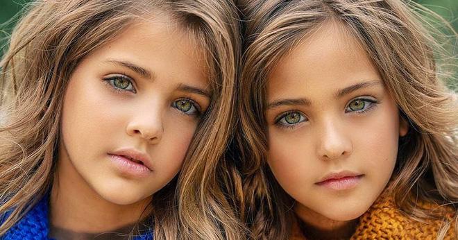 Cặp song sinh được mệnh danh đẹp nhất thế giới, 6 tháng tuổi đã nhận hợp đồng quảng cáo có ngoại hình thay đổi ra sao sau 10 năm? - Ảnh 7.