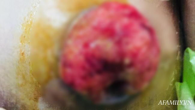 Sờ được khối u lạ ở ngực nhưng chủ quan không điều trị, 6 tháng sau người phụ nữ phát hiện ung thư vú di căn - Ảnh 2.