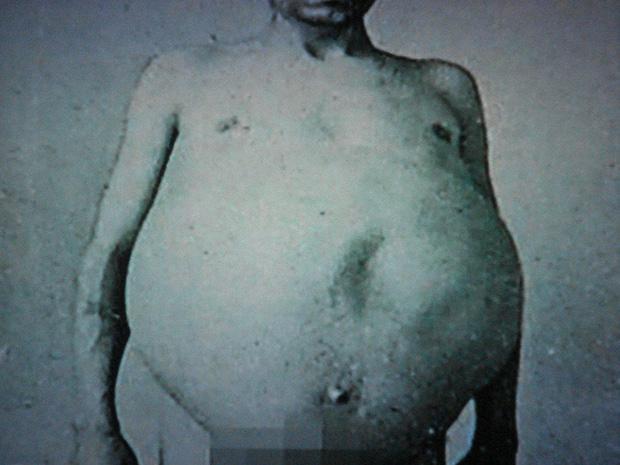Chuyện kỳ lạ về người đàn ông bị táo bón bẩm sinh, chết khi cố đi đại tiện và ruột già được trưng bày trong bảo tàng Mỹ gây sởn da gà - Ảnh 1.