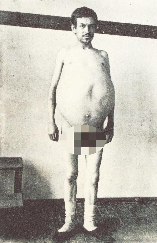 Chuyện kỳ lạ về người đàn ông bị táo bón bẩm sinh, chết khi cố đi đại tiện và ruột già được trưng bày trong bảo tàng Mỹ gây sởn da gà - Ảnh 3.