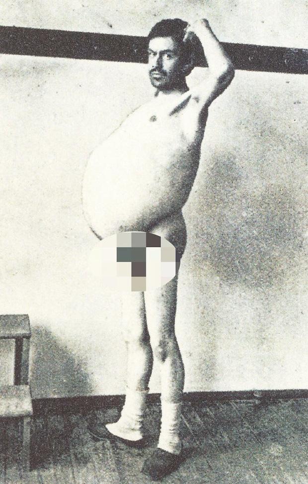 Chuyện kỳ lạ về người đàn ông bị táo bón bẩm sinh, chết khi cố đi đại tiện và ruột già được trưng bày trong bảo tàng Mỹ gây sởn da gà - Ảnh 4.