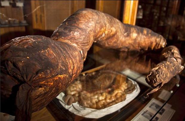 Chuyện kỳ lạ về người đàn ông bị táo bón bẩm sinh, chết khi cố đi đại tiện và ruột già được trưng bày trong bảo tàng Mỹ gây sởn da gà - Ảnh 5.