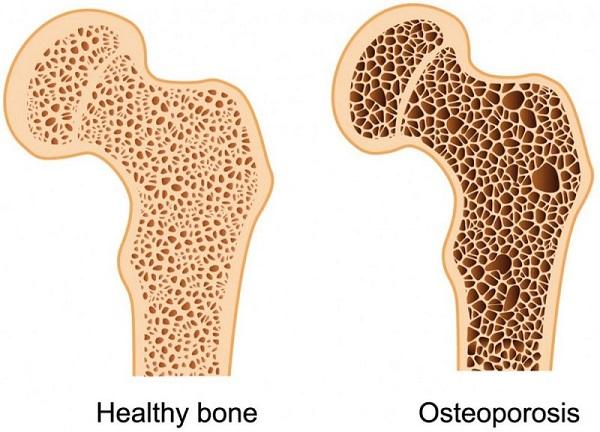 BS tiết lộ công thức tự đánh giá nguy cơ loãng xương: 3 nhóm người nên kiểm tra ngay - Ảnh 2.
