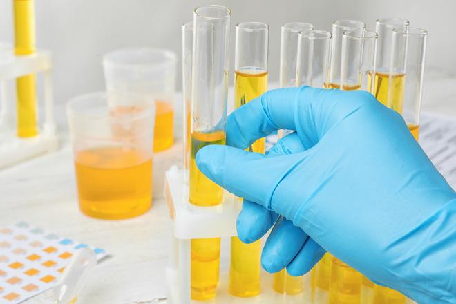 Đột phá: Chỉ xét nghiệm nước tiểu, 20 phút đã có ngay kết quả ung thư tuyến tiền liệt với độ chính xác gần 100% - Ảnh 1.