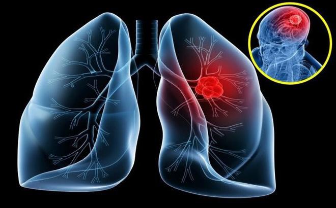 Các bệnh ung thư thường gặp nhất - Ảnh 1.