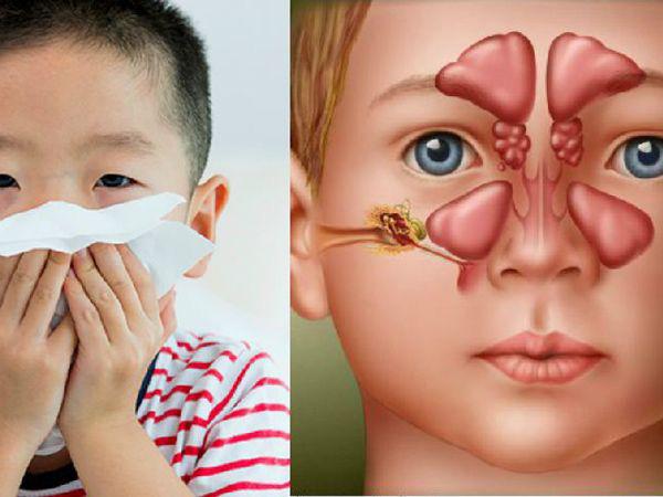 Viêm xoang không chỉ là bệnh của người lớn - Ảnh 1.