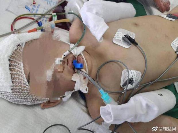 Mẹ ghẻ đánh đập con gái riêng 12 tuổi rồi thản nhiên đi du lịch cùng con ruột, 7 tháng sau tình trạng nạn nhân khiến ai cũng phẫn nộ - Ảnh 2.
