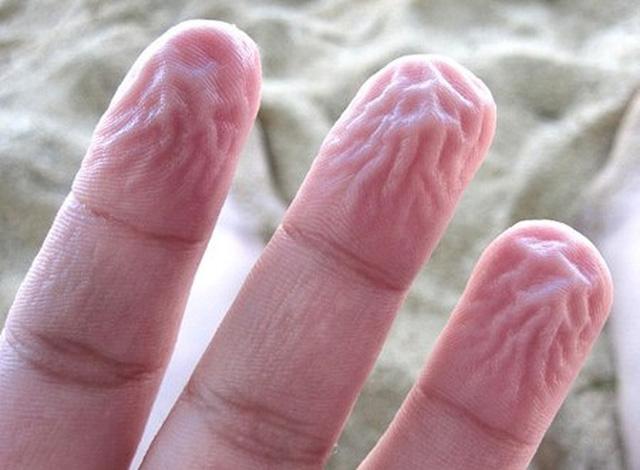 Ngón tay nhăn nheo sau khi bị ngâm vào nước là do đâu? - Ảnh 5.