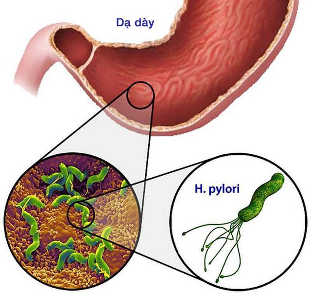 Nhiễm vi khuẩn Helicobacter pylori và nỗi lo ung thư dạ dày - Ảnh 1.