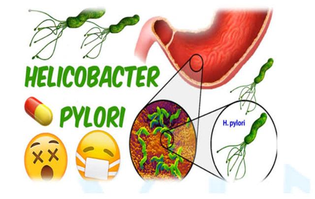 Nhiễm vi khuẩn Helicobacter pylori và nỗi lo ung thư dạ dày - Ảnh 2.