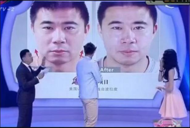 Cựu cầu thủ Man United phải phẫu thuật sửa khuôn mặt vì bị hắt hủi tại quê nhà Trung Quốc - Ảnh 2.