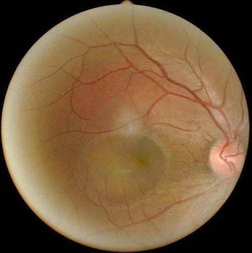 BS nhãn khoa: Người trẻ sử dụng điện thoại, máy tính nhiều có thể mắc bệnh mắt vĩnh viễn - Ảnh 2.