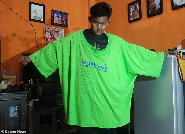 Từng được mệnh danh là đứa trẻ béo nhất thế giới, ngoại hình của cậu bé Indonesia giờ ra sao? - Ảnh 5.