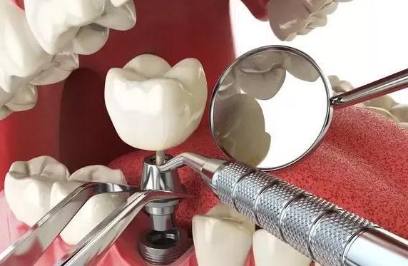 3 dấu hiệu ở răng chứng tỏ gan đang kêu cứu: Hãy tự kiểm tra xem bạn có không? - Ảnh 3.