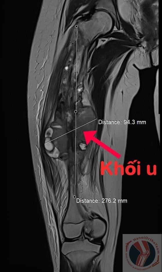 Ca phẫu thuật thay xương đùi cho bệnh nhân nhỏ tuổi nhất Việt Nam, thứ 2 thế giới - Ảnh 1.