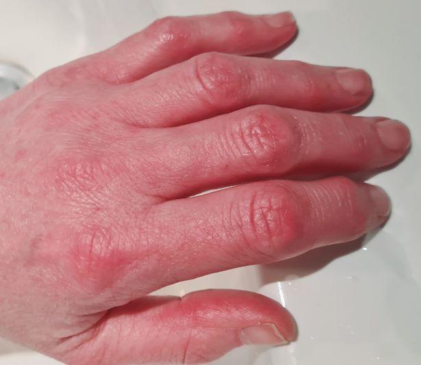 Cảm giác như bỏng phóng xạ: Triệu chứng ngón chân COVID khiến người bệnh sợ hãi, bác sĩ nói gì? - Ảnh 3.
