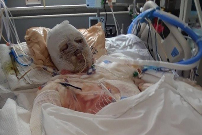Cận cảnh trường hợp cấy ghép mặt và tay thành công đầu tiên trên thế giới, nhìn dung mạo trước khi phẫu thuật mới thấy quả là kỳ diệu! - Ảnh 1.