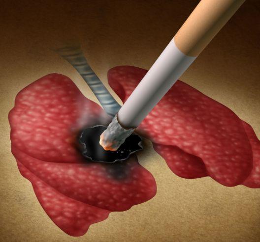 Hai vợ chồng bị ung thư phổi: Có dấu hiệu cảnh báo sớm ở tay từ lâu nhưng đã bỏ qua - Ảnh 2.