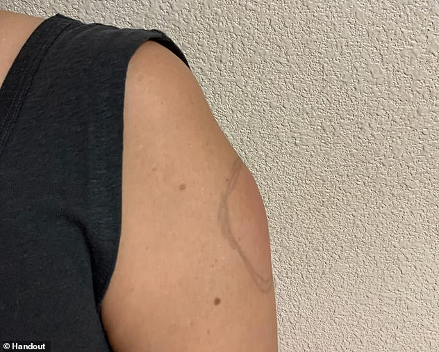Cánh tay sưng to như quả bóng chày sau khi tiêm vắc xin COVID-19: Bác sĩ nói gì? - Ảnh 1.