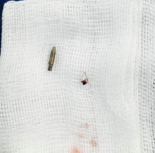Bị nghịch dại bé 12 tuổi gặp nặn do đầu bút bi đâm thẳng vào vùng kín - Ảnh 1.