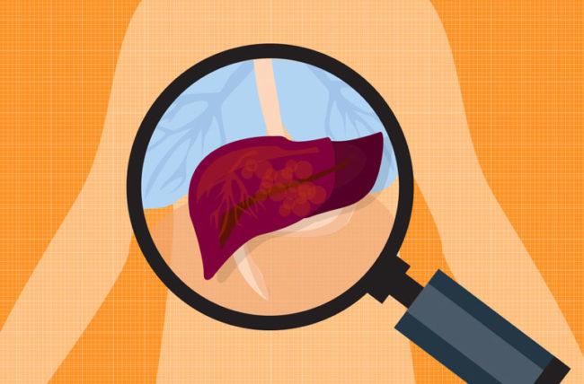 Gan kém có 4 dấu hiệu rõ rành rành sau, cần gặp bác sĩ ngay: Tuyệt chiêu bảo vệ gan trước khi quá muộn - Ảnh 6.
