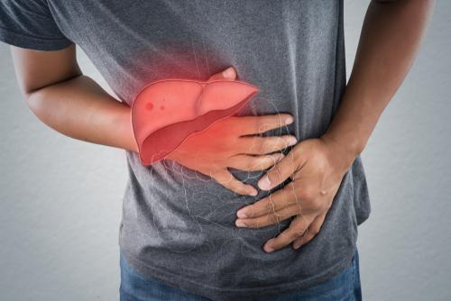 Gan kém có 4 dấu hiệu rõ rành rành sau, cần gặp bác sĩ ngay: Tuyệt chiêu bảo vệ gan trước khi quá muộn - Ảnh 4.