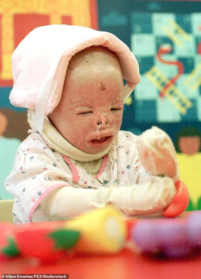 Cô bé từng bỏng nặng đến biến dạng, cứu hỏa nhìn cứ ngỡ là búp bê nhựa đen gây bất ngờ với diện mạo và cuộc sống hiện tại - Ảnh 3.