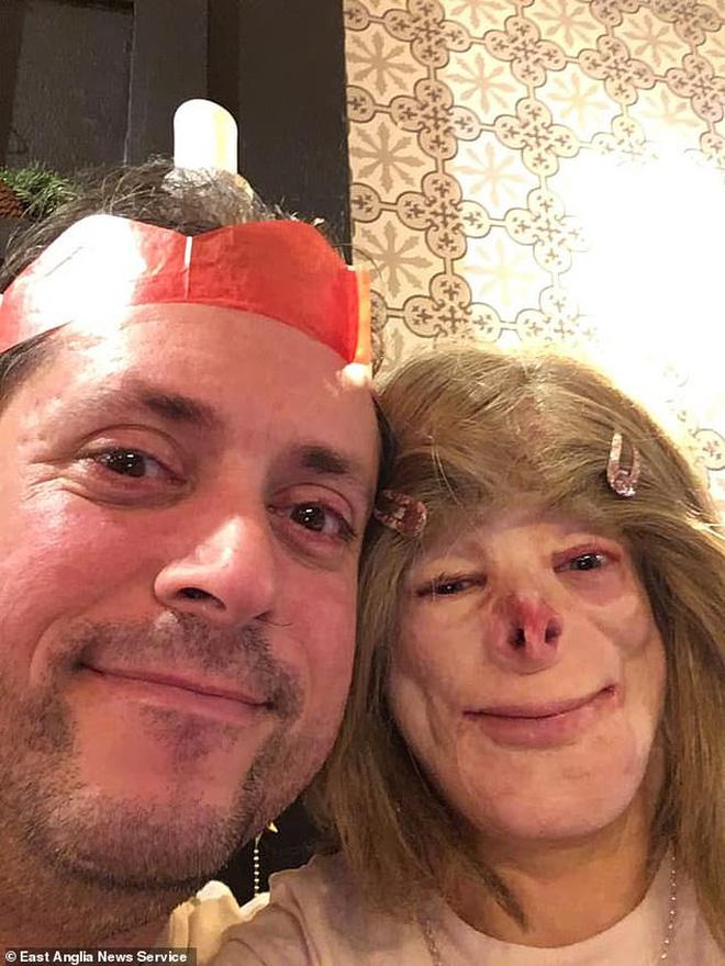 Cô bé từng bỏng nặng đến biến dạng, cứu hỏa nhìn cứ ngỡ là búp bê nhựa đen gây bất ngờ với diện mạo và cuộc sống hiện tại - Ảnh 12.