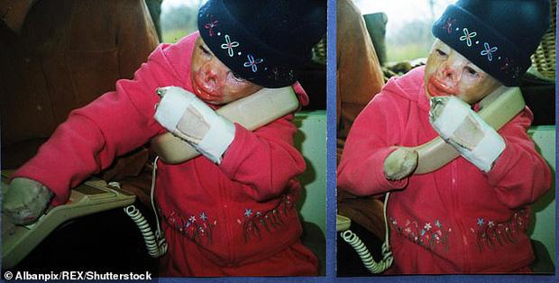 Cô bé từng bỏng nặng đến biến dạng, cứu hỏa nhìn cứ ngỡ là búp bê nhựa đen gây bất ngờ với diện mạo và cuộc sống hiện tại - Ảnh 6.